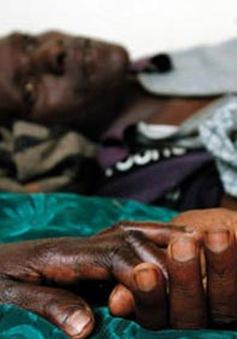 Phòng chống HIV - Vấn đề đau đầu của các nhà chức trách châu Phi
