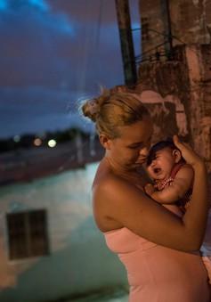 Báo động nguy cơ bị điếc ở trẻ sơ sinh nhiễm virus Zika