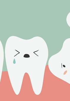 """Những phiền toái từ chiếc răng """"khôn"""" nhưng mọc """"dại"""""""