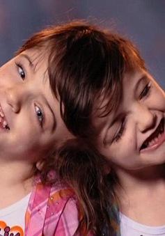 Các cặp sinh đôi dính liền trên thế giới