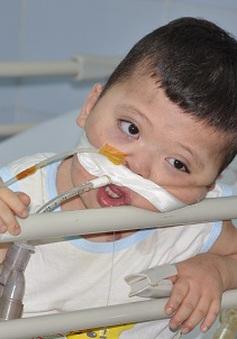 3 năm không cai được máy thở, bé 3 tuổi cầm cự sự sống qua ngày