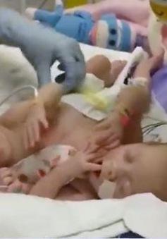 Mỹ: Phẫu thuật tách rời thành công cặp đôi song sinh 2 tuổi dính liền