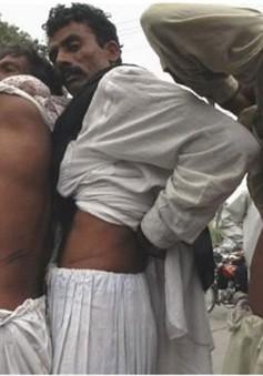 Ấn Độ: 5 bác sĩ bị bắt giữ do tham gia đường dây buôn bán thận