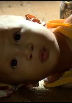 Xót xa em bé vừa bị sứt môi hở hàm ếch vừa bị bệnh tim bẩm sinh
