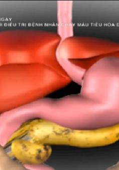 """Phương pháp Tips - """"Cứu cánh"""" cho bệnh nhân chảy máu tiêu hóa do xơ gan"""