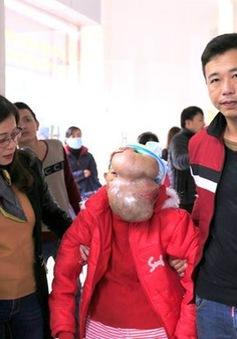 Xúc động hành trình tìm lại gương mặt người của cụ bà dân tộc Dao