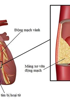 Nguyên nhân gây xơ vữa động mạch vành: Những điều cần biết