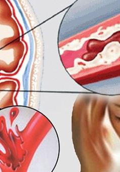 Tai biến mạch máu não: Dấu hiệu và cách xử lý