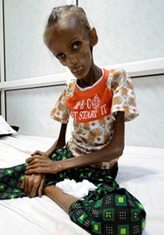 Gần 17 triệu người dân Yemen ăn thực phẩm bẩn