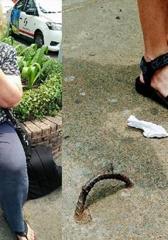Bồi thường 1.000 USD cho du khách té ngã vì móc sắt trên đường