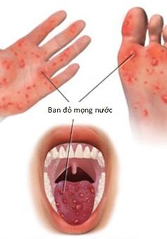 Số ca bệnh tay chân miệng tăng mạnh ở ĐBSCL
