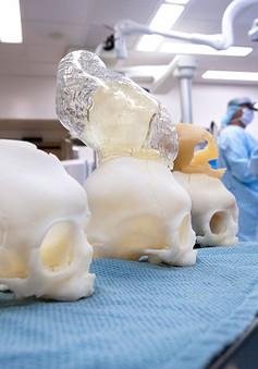 Mô hình 3D giúp phẫu thuật thực hành não