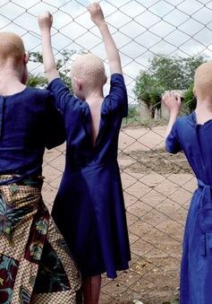 Nỗi đau của những người bạch tạng tại châu Phi