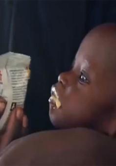 1,4 triệu trẻ em châu Phi có thể tử vong do nạn đói