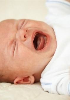Dấu hiệu trẻ quấy khóc do còi xương