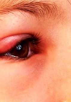 Mẹo nhỏ giúp điều trị khi bị lẹo mắt