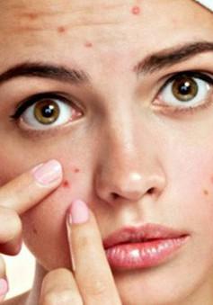 Tự nặn mụn gây hại thế nào cho làn da và sức khỏe?