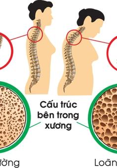 Loãng xương và chế độ dinh dưỡng phòng bệnh
