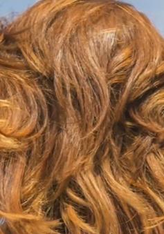Người tóc đỏ có khả năng mắc bệnh Parkinson cao hơn tóc đen