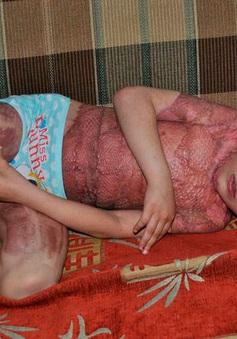 Xót xa bé gái 5 tuổi bỏng toàn thân chỉ vì bắt chước trò chơi trên mạng