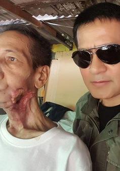"""Từ một vết loét miệng, người đàn ông này đã bị """"ăn"""" mất gần nửa khuôn mặt"""