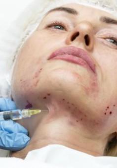 Báo động tình trạng phẫu thuật thẩm mỹ chui giá rẻ tại Albania