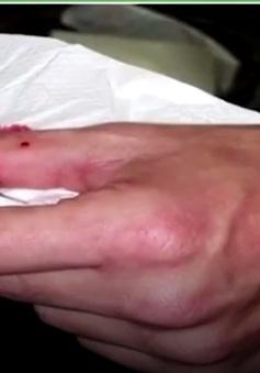 Gia tăng bệnh nhân nhập viện vì bị rắn cắn