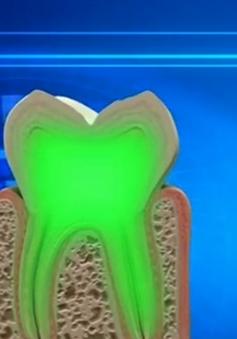 Thuốc điều trị Alzheimer giúp răng sâu... tự hàn