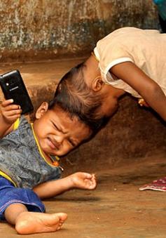 Ấn Độ: Tách thành công cặp song sinh dính liền đầu