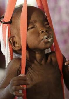 Hàng triệu trẻ em Sudan nguy cơ suy dinh dưỡng do thiếu nước sạch