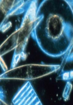 Tảo biến đổi tiêu diệt 90% tế bào ung thư
