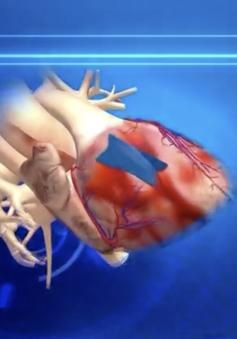 Keo phẫu thuật lấy cảm hứng từ nhớt ốc sên