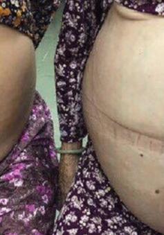 TP.HCM: Bóc tách thành công khối u 20kg cho bệnh nhân 80 tuổi