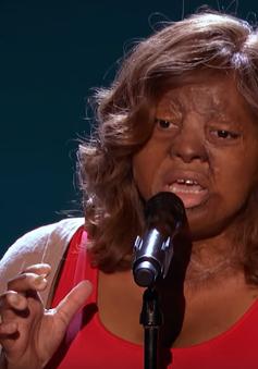 America's Got Talent: Xúc động trước giọng ca của cô gái sống sót sau tai nạn máy bay