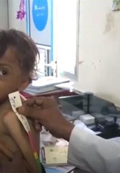 Liên Hợp Quốc cảnh báo về những thảm họa khủng khiếp tại Yemen