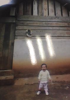 Bé gái 2 tuổi tim bẩm sinh chưa một đêm ngủ ngon giấc