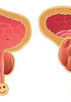 Nam giới nào dễ mắc ung thư tiền liệt tuyến?