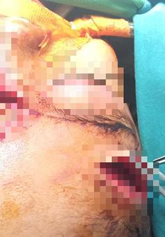 Hãi hùng: Bé gái 31 tháng tuổi bị chó nhà cắn nát mặt