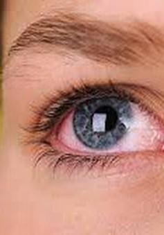 Bệnh glôcôm: Những triệu chứng dễ bị bỏ qua