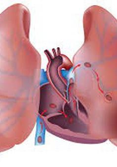 Cứu sống bệnh nhân cao tuổi thuyên tắc phổi lớn
