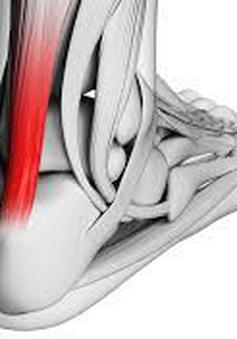Nguy cơ mất khả năng vận động vì bệnh viêm gân