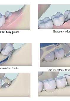Infographics: Những điều bạn nên biết về răng khôn