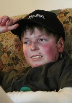 Căn bệnh hiếm gặp khiến cậu bé có thể tử vong chỉ với một cái ôm