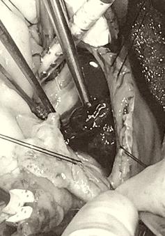 Mổ khẩn cấp để cứu bệnh nhân có nguy cơ đột tử do khối u trong tim