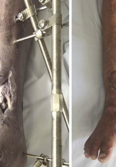 Loại bỏ nguy cơ hoại tử xương nhờ phương pháp chuyển vạt da