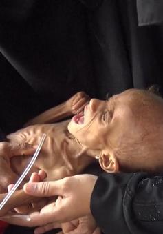 Trẻ em Yemen khốn khổ trong khủng hoảng y tế lớn nhất thế giới