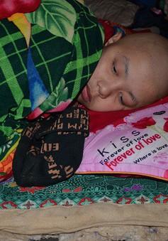 Mắc bệnh ung thư, cậu bé 15 tuổi sống lay lắt như đèn trước gió