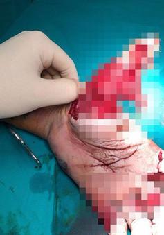 Một thanh niên mất hai ngón tay vì đốt pháo