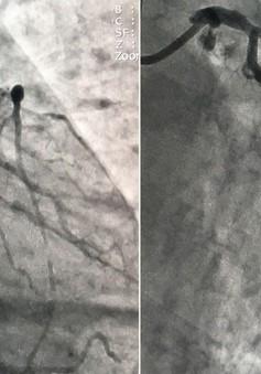 Can thiệp mạch vành kịp thời cứu sống bệnh nhân bị nhồi máu cơ tim cấp