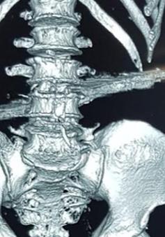 Thanh sắt dài 40cm đâm thủng bụng, cột sống và thắt lưng bệnh nhân
